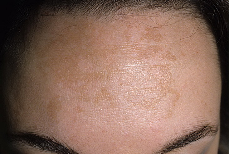 how to make oniment for sun spots on skin